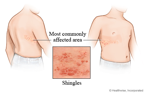 #5: The most common sites affected with Shingles.