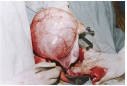 A Large Ovarian Cyst
