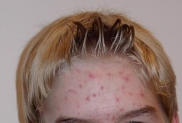 Adolescent acne