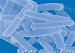 What are the side effects of taking probiotics?