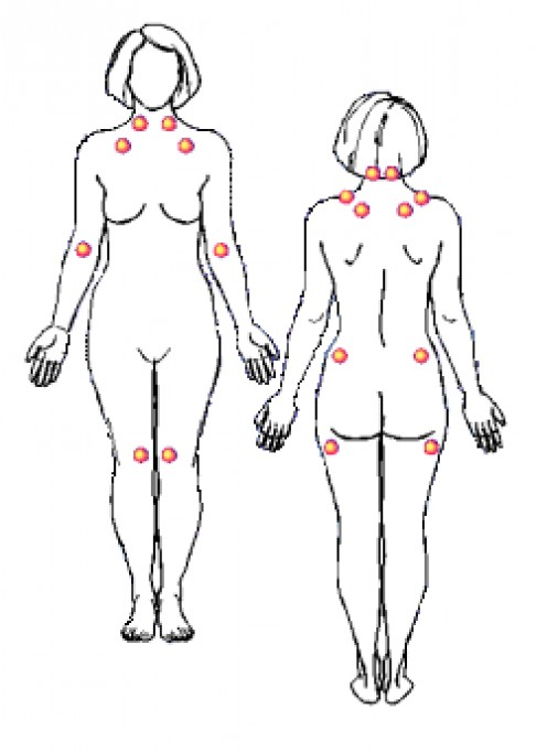 Fibromyalgia tender point locations.  11 of 18 known locations is necessary for diagnosis.