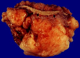 Lipoma after being removed from the body