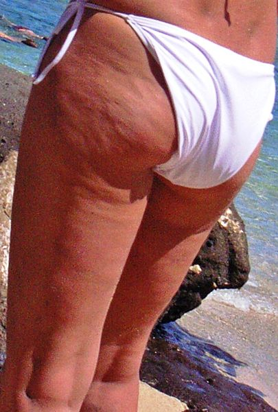 Dimpled appearance of cellulite