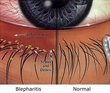 Dandruff affecting eyelids Blepharitis