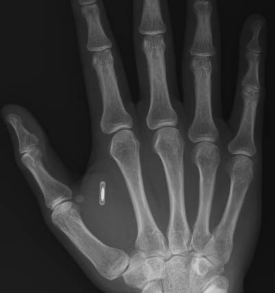 There are several designs for the implantable FRID chip and some people already have them surgically inserted, such as shown here in this X-ray of someone with a chip in their hand.