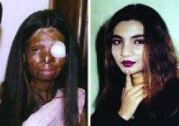 Fakhra, before and after acid attack