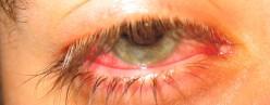 What makes an eye bloodshot?