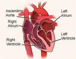Symptoms of SVT: Supraventricular Tachycardia  & Ventral Septal Defect-Children's Heart Disease