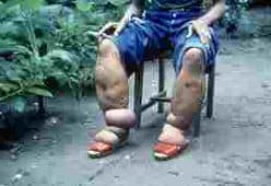 Elephantiasis, another awful disease that can be mozzie-borne