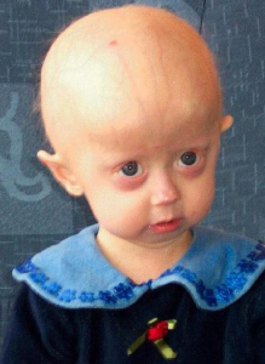 Young child with Hutchinson-Gilford Progeria Syndrome