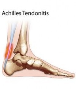 Achilles Tendon Pain.