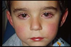 Eye Cold Treatment and Symptoms