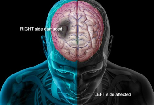 Damage in the right side of the brain causes left-sided weakness and other problems on the left side of the body.