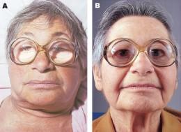 hypothyroidism on the left sides