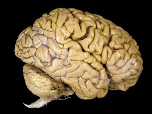 the human brain. it is a mass of jelly like substance. when a tumor develops and continues growing, it puts pressure on the brain tissue. this affects normal bodyfunction.