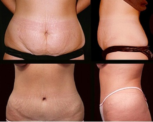 Abdominoplasty or tummy tuck to reduce excess skin and fat in the tummy area