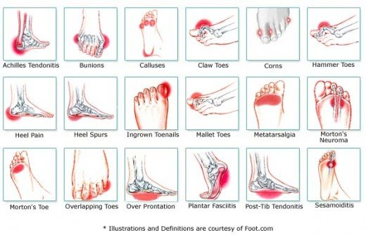 A diagram showing various Foot Conditions.