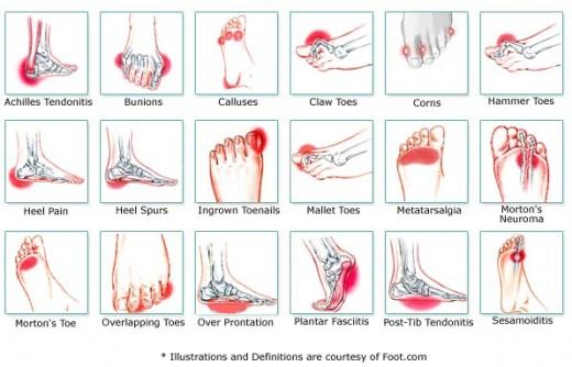 foot conditions corns