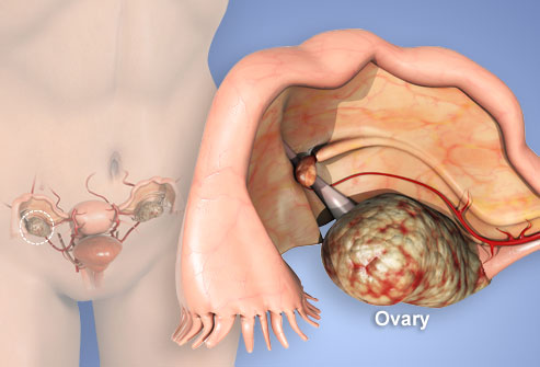 Ovarian Cancer Stage four Prognosis