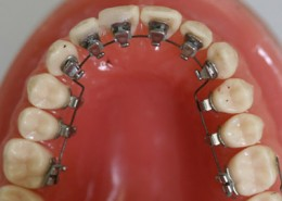 This is what lingual braces look like.