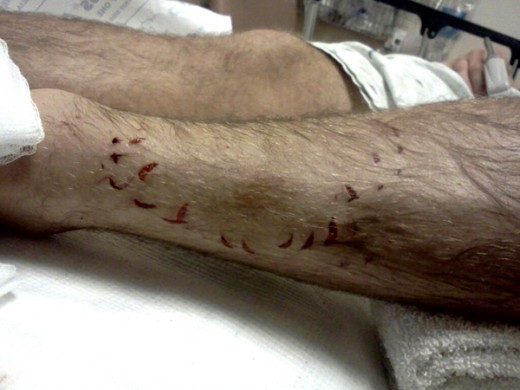 Justin Worral's shark bite wound to leg