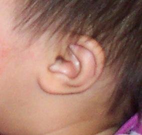 A Baby Ear