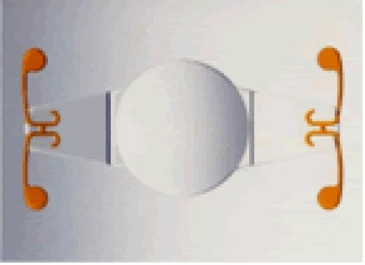 A crystalens IOL implant