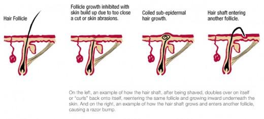 Ingrown Hair Infection