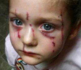 This young girl was attacked by a cat after offering it food, and had to receive 27 stitches. The cat, of course, was left alone by authorities to continue its miserable race of child assaulting degenerates.