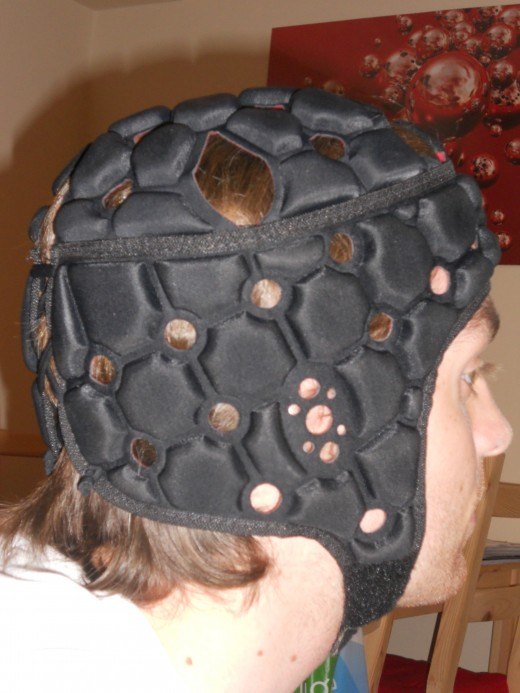A scrum cap should be seriously considered by anyone playing rugby. It reduces contact injuries, prevents splitting of the skin and prevents cauliflower ear.