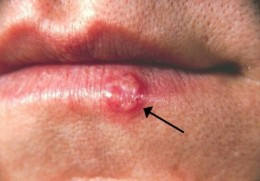 This is what just one herpes simplex sore looks like on your mouth. Imagine 10 to 50 of them you know where.