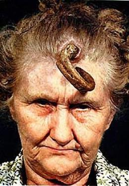 sebaceous horn