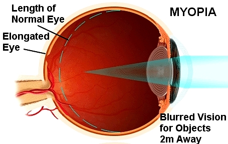 Myopia caused by elongation of the eyeball. Reading without adequate breaks may be a cause, especially in children