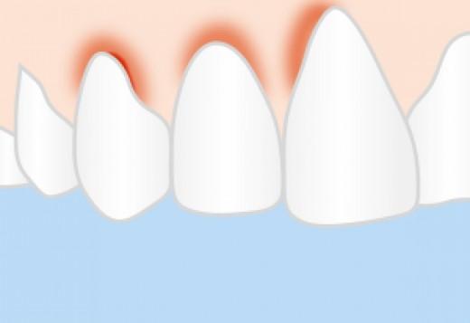 Observe proper oral care to get rid of gingivitis.