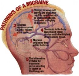Prescription medication for headaches