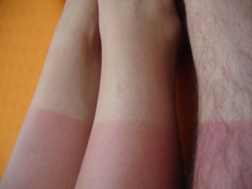 We have all done it. We have all laughed (and cried) about it. But sunburn is more serious than many of us realise