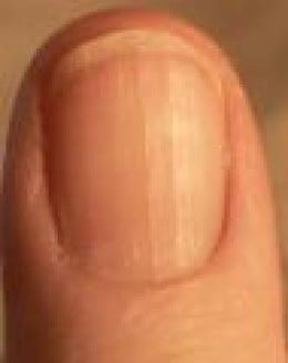 Your fingernails tell a great deal about your overall health and well being. For example if you have rigid and vertical lines as well as the absence, or lack of milky white half moons beneath your nail beds. This can indicate a B-12 deficiency