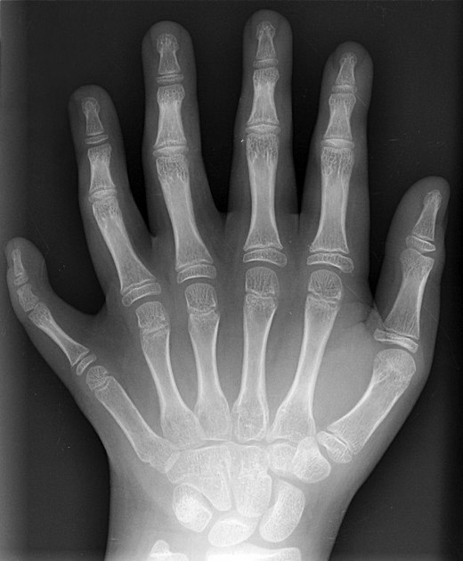 X-rays are studied in many physics courses. This image shows polydactyly, a condition in which a person has extra fingers or toes.