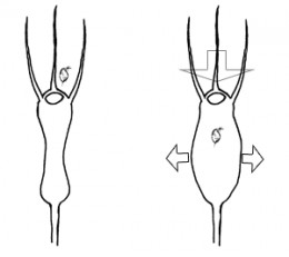 Bladder expansion and trapping mechanism.