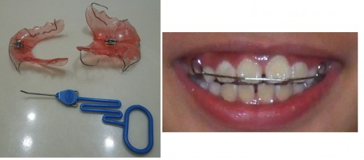 Retainers and its tool to make adjustment to help with under or overbite before braces