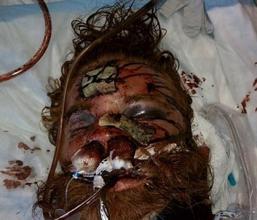 Kelly Thomas after police brutality