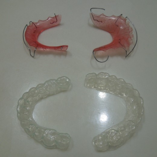 retainers for after braces