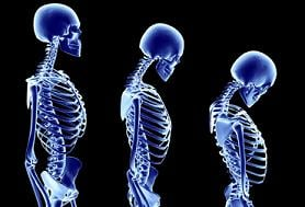 Stage of Osteoporosis