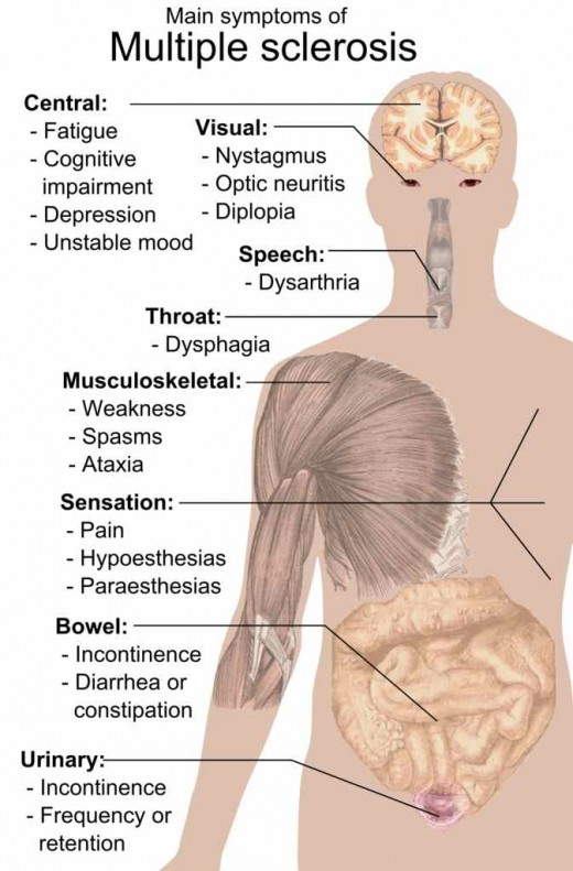 Despite appearing perfectly fine, a loved one with MS could be experiencing a number of symptoms, many of which are shown here.