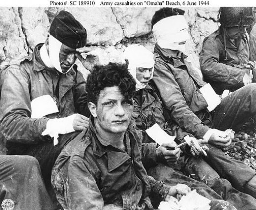 American assault troops of the 16th Infantry Regiment, injured while storming Omaha Beach, wait by the Chalk Cliffs for evacuation to a field hospital for further medical treatment. Colleville-sur-Mer, Normandy, France, 06/06/1944.
