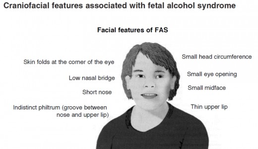Fetal Acohol Syndrome
