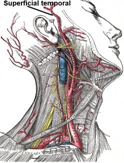 Giant Cell Arteritis Facts