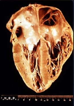 A Chagas Diseased Heart