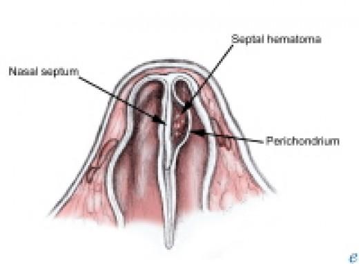 Image showing a nasal septal hematoma