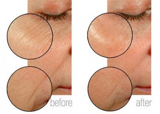 Before and after MKMen in an 8 week clinical trial it softens the appearance of fine lines, smooths and brightens skin.